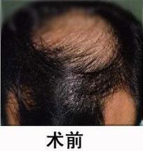 深圳科发源植发医院做了植发 挽救了我做男人的尊严