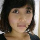 在武汉仁爱整形医院做了玻尿酸丰卧蚕 我的眼睛不再呆板