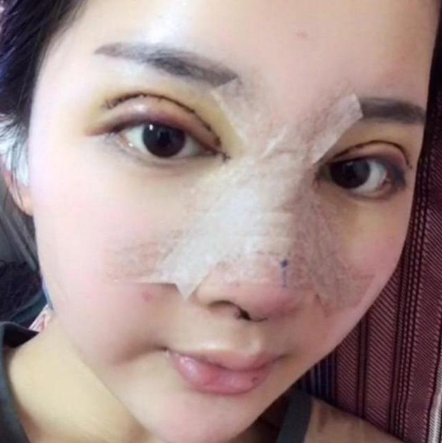 18岁的少女整容成迪丽热巴 花费100万整容换张脸