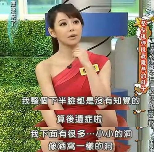 韩国购物网站主持人斯容整形 勇敢追梦的丑小鸭蝶变