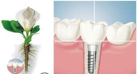 武汉德亚口腔医疗整形种植牙 不损伤周围牙齿,固位稳定