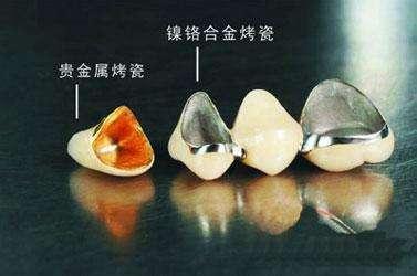 突破传统口腔医疗服务 来北京德贝口腔医疗做烤瓷牙