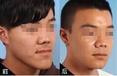 广州德伦口腔医疗地包天矫正 请勿丧失乳牙期矫正时机