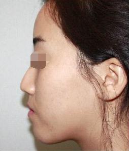 在北京伊美尔医疗美容整形做垫鼻尖 摸起来手感真实柔软