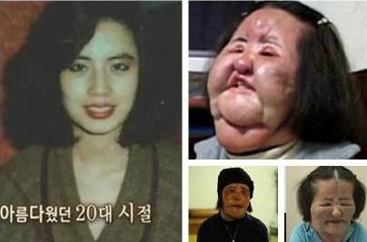 韩国电风扇阿姨整容成高潮脸 毁容后57岁离世