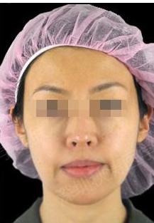 说说我在扬州施尔美整形做电波拉皮面颈部除皱的心得