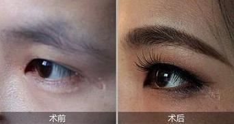 变美道路上需谨慎 深圳阳光医院双眼皮整形术有保障