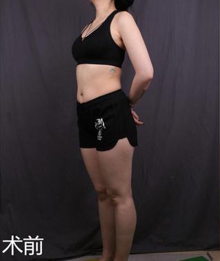 南京美莱医疗美容整形吸脂瘦腿 一次性解决了我腿粗的问题