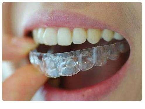 美白牙齿需要多少钱 安徽哪家医院好