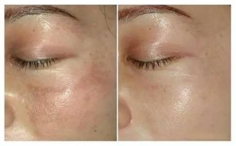 芜湖壹加壹医疗美容医院光子嫩肤 体会意想不到的嫩肤效果