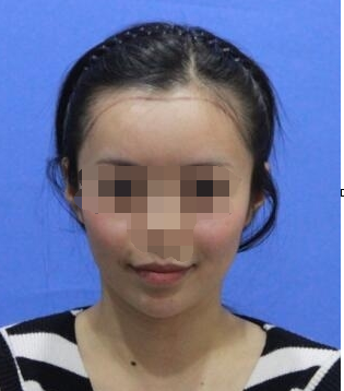 美无止境 说说我在重庆迪邦医院毛发移植科做发际线种植
