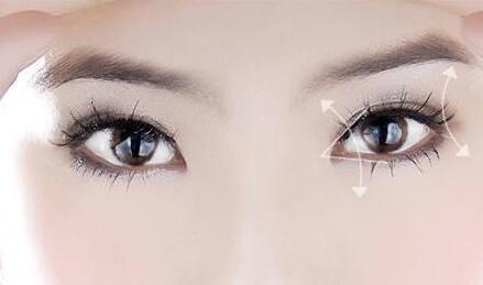 武汉双眼皮切开法,让你的眼睛会说话!