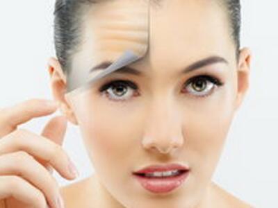咸阳激光除皱的效果好不好 术后如何保养肌肤