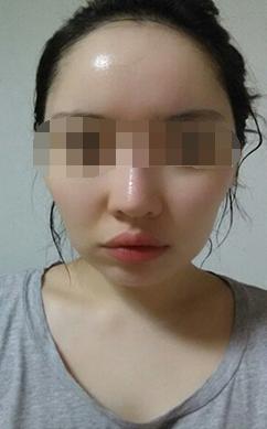 想要瘦脸又嫩肤 和我一样来武汉美莱整形医院做面部吸脂
