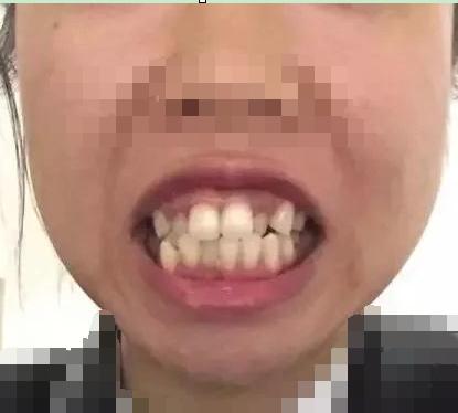 通过在济南圣贝口腔医疗整形戴牙套矫正 说说我变美的经历