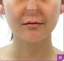 重庆美伽整形医院热玛吉除皱 术后6个月内仍可持续改善皮肤