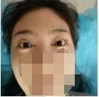 双眼皮修复武汉亚太整容医院口碑不错 让我安心选择