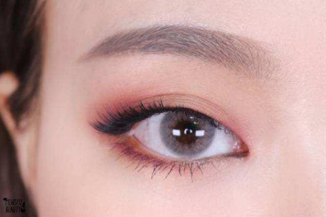 西宁澳丽眼睛整形开眼角会留疤吗