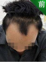 南京雍禾植发整形医院做发际线种植 解决了我的面子问题