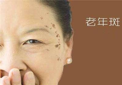 北京基恩医院整形科光子祛斑 帮助我们对抗岁月的洗礼