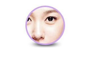 金鱼眼整形方法 手术去眼袋案例对比图