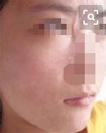 东莞康华医院整形美容科点阵激光去痘 帮我摆脱了问题皮肤
