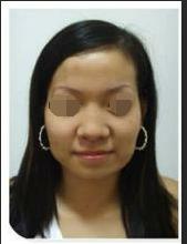 我在天津解放军464医院做了鼻翼缩小术 优雅美鼻现行记
