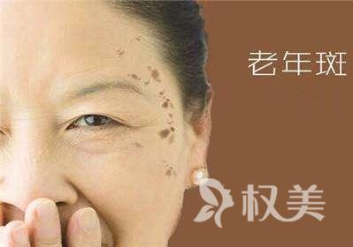 内蒙古医科大学附属医院美容整形科激光祛老年斑 老年人也有爱美的权力