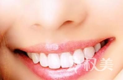 吉林大学中日联谊医院怎样能快速美白牙齿