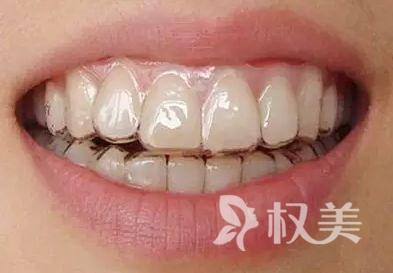 北京仁和医院美容整形牙齿科隐形托槽矫正 美观定位精准