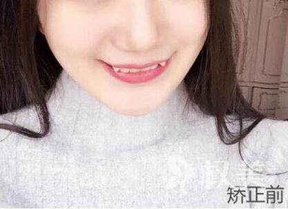 从小可爱变成小仙女 后悔没早去北京拜博口腔做牙齿矫正