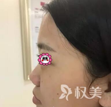 泉州解放军第180医院美容整形科做假体隆鼻 效果符合我心意