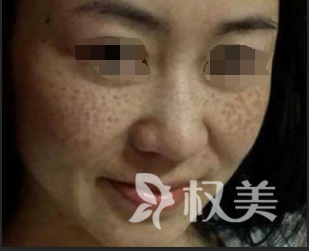 贵港人民医院整形外科 激光祛斑的美容方法不用开美颜啦