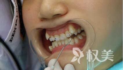 牙齿矫正要多少钱 我在秦皇岛港口医院矫正完美逆袭成功