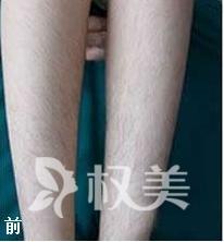 中国人民解放军251医院医疗美容整形科做激光脱毛 完美蜕变