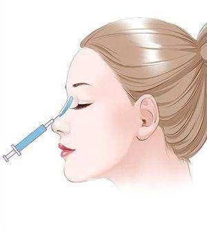 海口人民医院整形科永久性注射隆鼻怎么样 价格多少