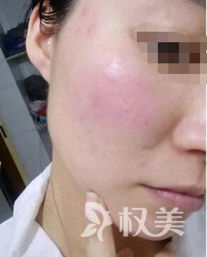给大家反馈 我在肇庆人民医院激光科做激光祛红血的效果