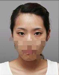 石家庄260医院整形外科切开双眼皮手术 从内到外改变了我