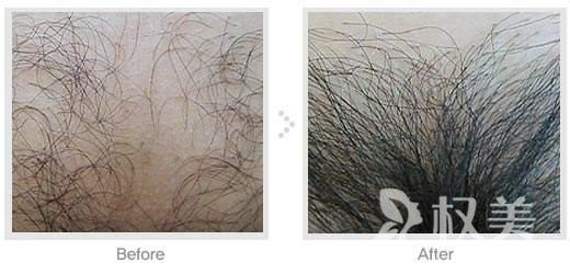 科发源上海植发整形医院阴毛种植 一流技术让毛发再生不再是梦