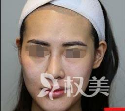 佳木斯妇幼整形美容科美白嫩肤方法 让我重回水嫩肌肤