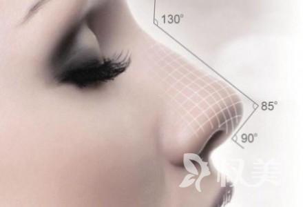 郑州鼻头缩小术多久恢复 自然协调360度无懈可击的美