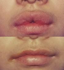 湘雅常德医院整形外科重唇矫正 给你机会享受美丽