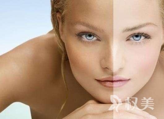 深圳天丽美容激光美白嫩肤价格是多少
