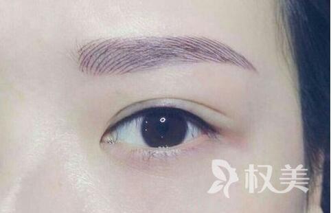 郑州碧莲盛植发整形医院眉毛种植_不做