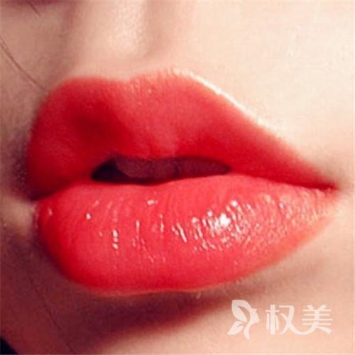 上海长征医院整形外科玻尿酸丰唇 成分安全效果自然