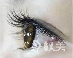 """柳州贞韩植发整形医院睫毛种植 让你拥有""""卡姿兰""""大眼"""