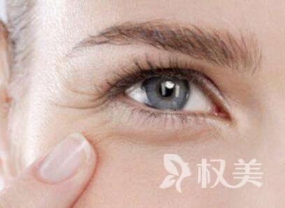 眼角除皱多少钱 方法有哪些
