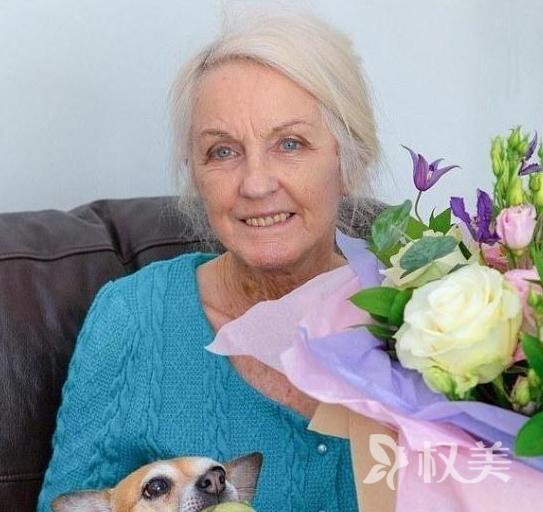 80岁奶奶做整形割眼袋 伦敦南部最年长的整容者
