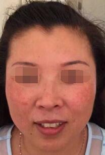 广州医学院第二附属医院整形激光科祛斑 期待我2个疗程后美丽的蜕变吧
