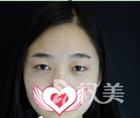 术前谨慎选择了广州现代医院整形科做切开双眼皮 术后收获萌萌的美眼